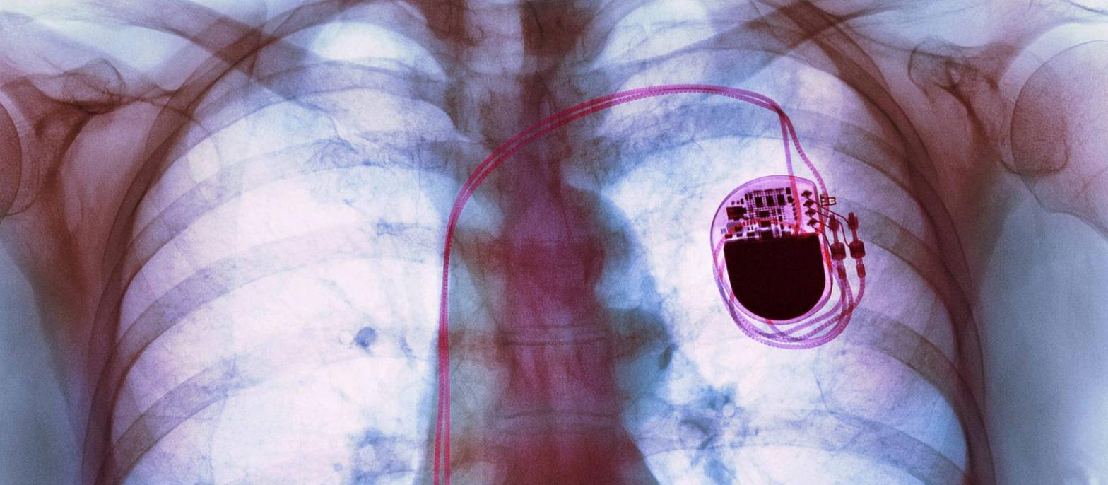 Peut-on faire du sport avec un pacemaker ?